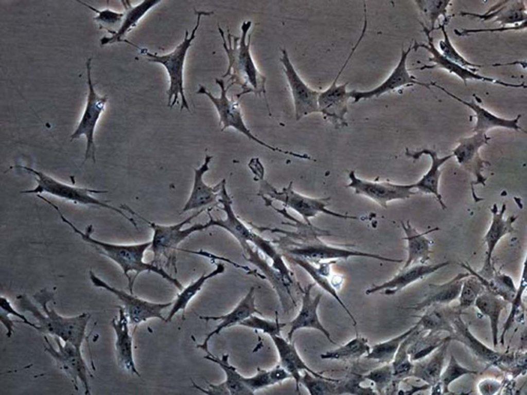 fibroplasts